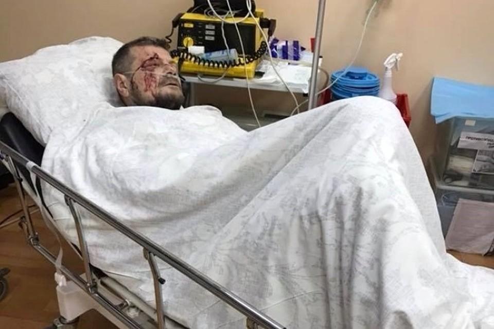 Пострадавшего при взрыве вКиеве депутата Мосийчука благополучно прооперировали