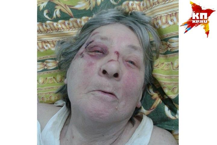 ВИжевске ищут родственников старый женщины, достаточно серьезно пострадавшей вДТП