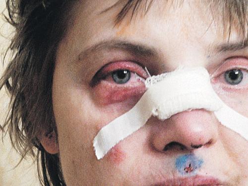 Главные доказательства агрессии соседа у Ольги на лице - искалеченный нос и опухший глаз.
