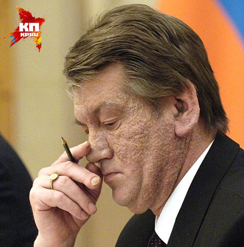 Только лепра поражает мочки ушей: они увеличиваются, напоминая сливу Фото: РИА Новости