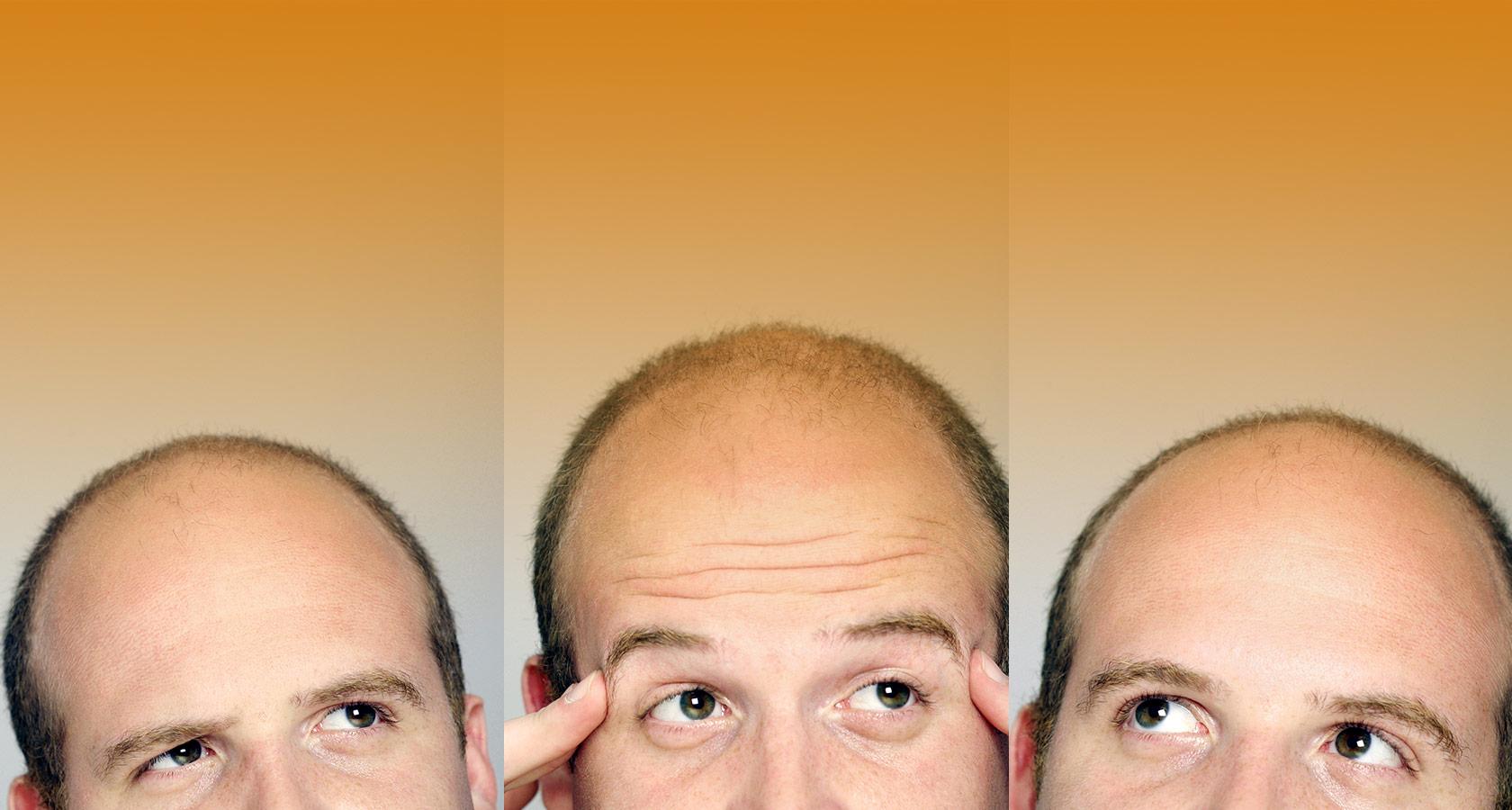 Выпуклый лоб и глаза у ребенка: фото, причины - Головной мозг 99