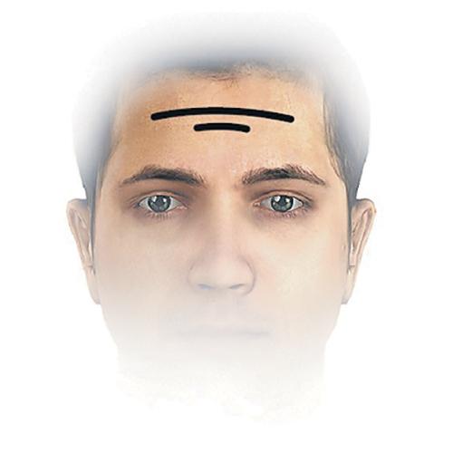 Выпуклый лоб и глаза у ребенка: фото, причины - Головной мозг