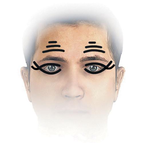 Выпуклый лоб и глаза у ребенка: фото, причины - Головной мозг 38