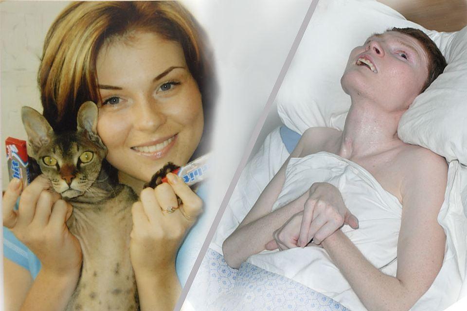 Беда случилась с Ириной Пекарской, когда ей едва исполнилось 23 года. Фото слева сделано незадолго до пожара.