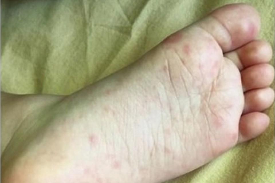 Ребенок из Молдовы подхватил вирус Коксаки.