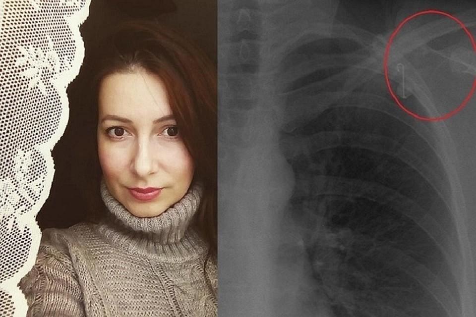 В клинике Мешалкина пригласили женщину на дополнительное обследование. Фото: https://www.instagram.com/khmeleva_photo/