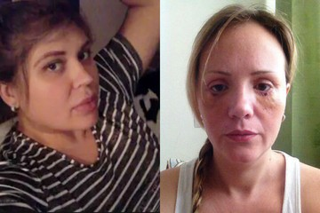 Алана Мамаева нашла для двух пострадавших от рук «Доктора Франкенштейна» пациенток новых хирургов