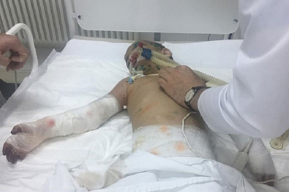 Девочку прооперировали — её рука почти спасена