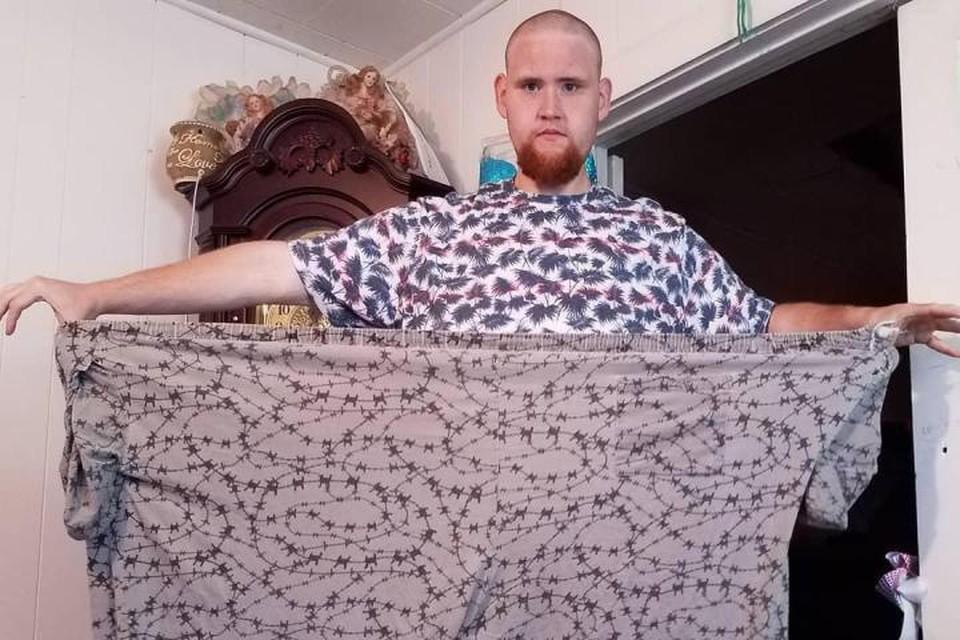 Три года назад Мэттью Хаузер страдал тяжелой формой ожирения