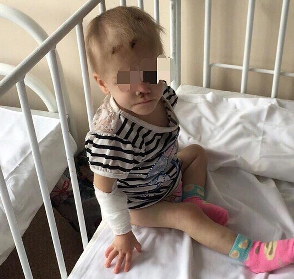 В таком виде девочка попала в больницу в 2018 году