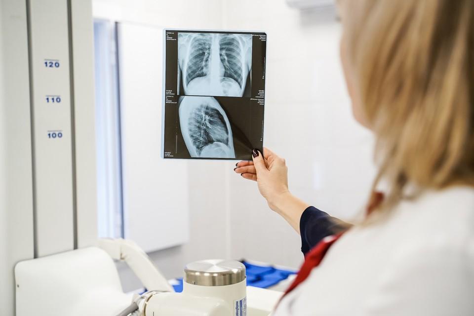 Когда мужчина приехал в больницу, у него работало лишь 5% от общего объема легких