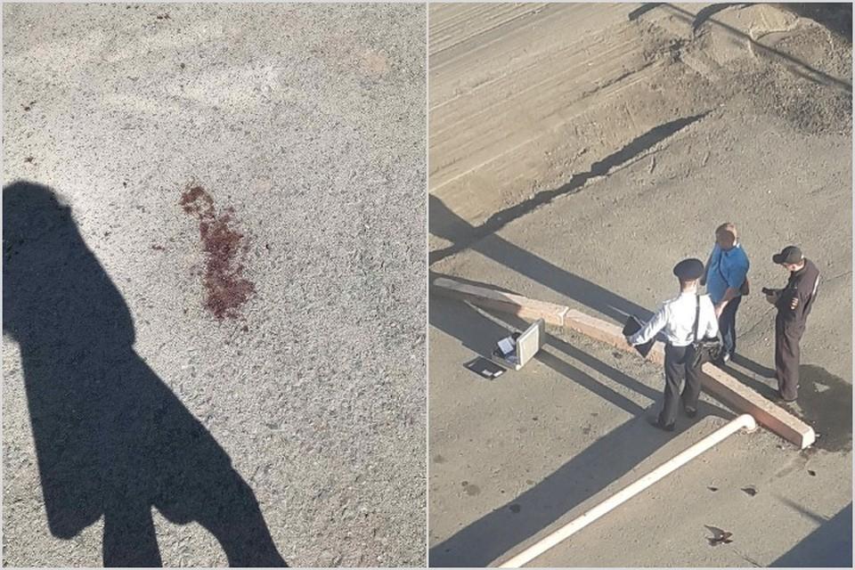 В Красноярском крае парень чудом выжил после выстрела в голову. Фото, видео: Подслушано в Ачинске.