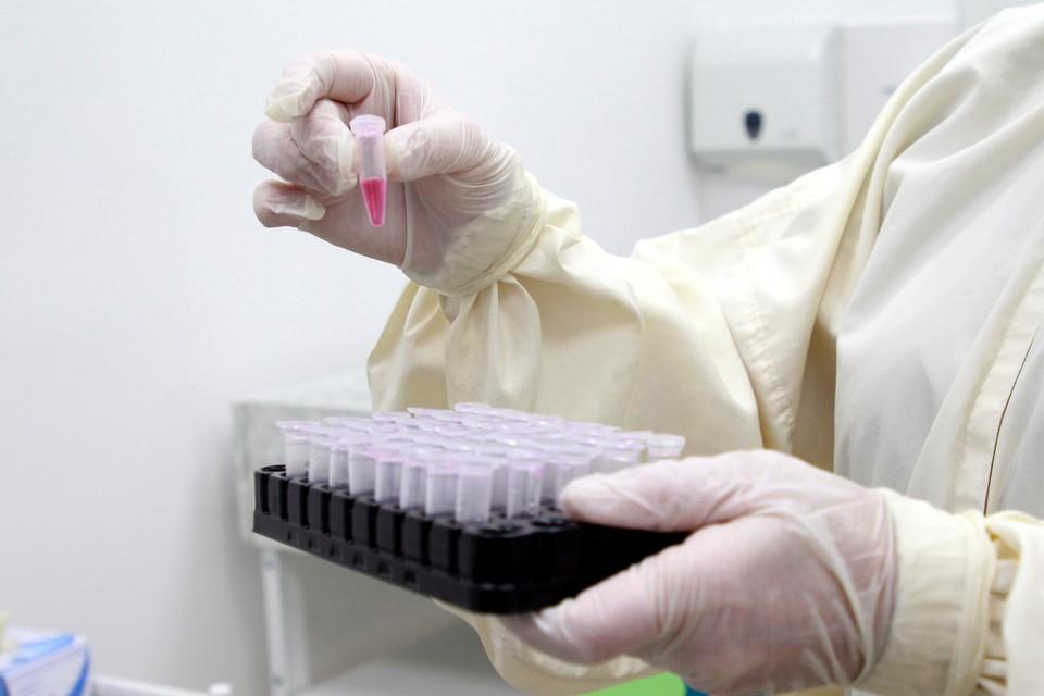 Нагрузка у врачей и лабораторий из-за коронавируса колоссальная.