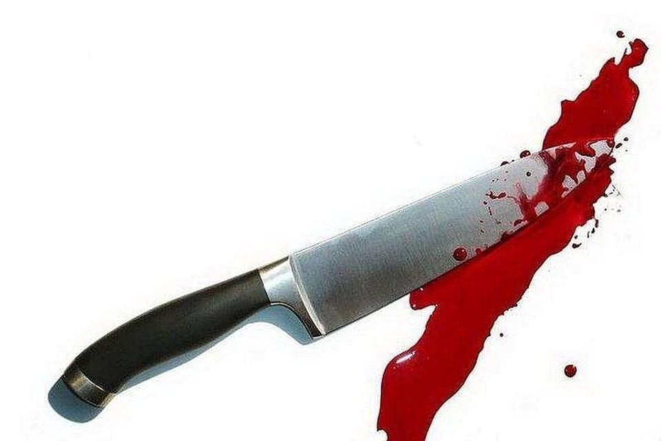 Женщина ударила сожителя ножом.