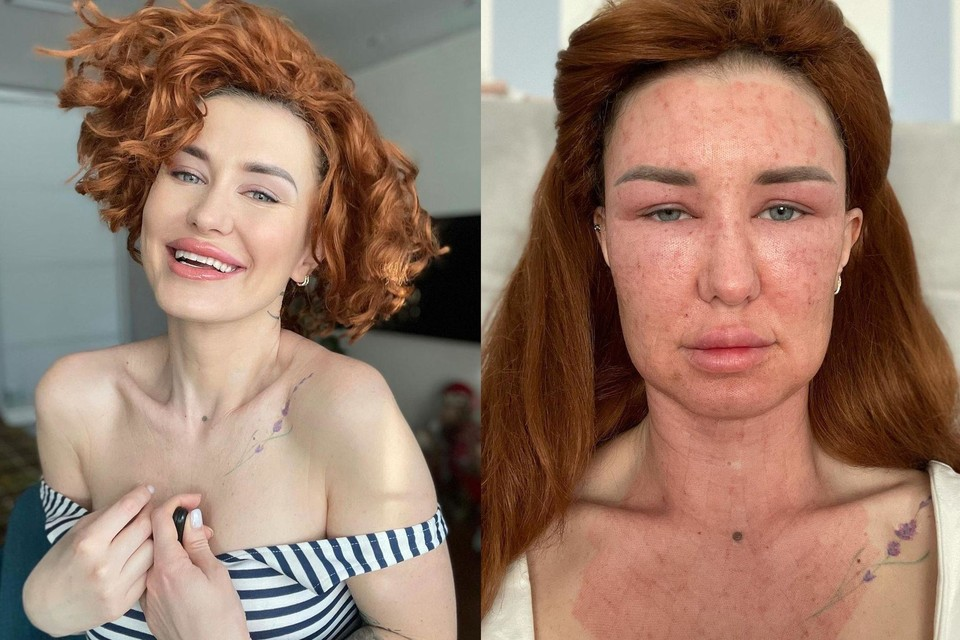 Алена хотела убрать с лица брыли и следы от акне, но после процедуры сильно опухла. Фото: Фото: www.instagram.com/novaya_luna