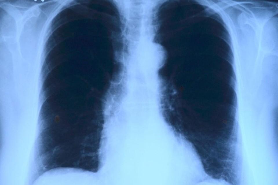 Белорусы запустили сервис, который выявляет бессимптомную пневмонию на основе снимка. Фото: pixabay