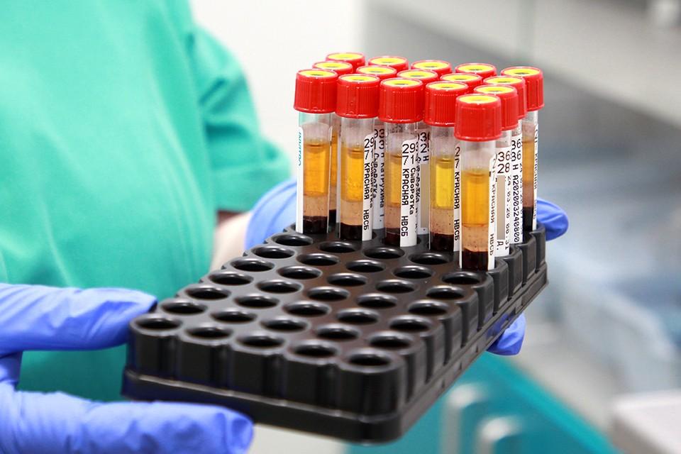 133 случая заражения коронавирусом подтвердились в Иркутской области за сутки