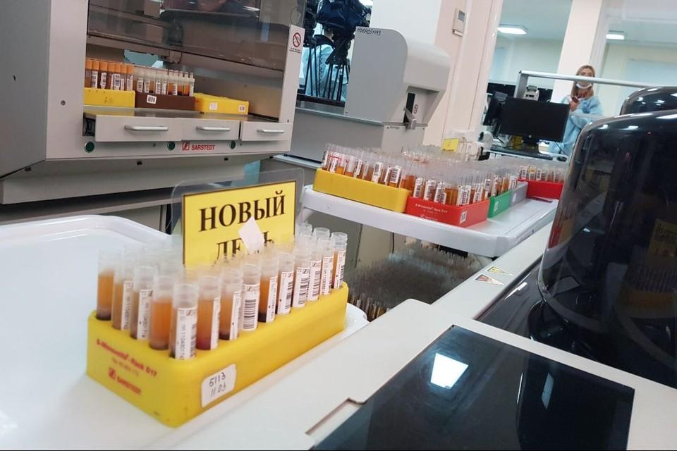За прошедшие сутки в лабораториях региона выполнено 4212 исследований на COVID-19.