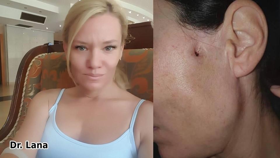 Молдаванку доктора Лану обвиняют в том, что она незаконно выполняла эстетические операции. Фото: соцсети