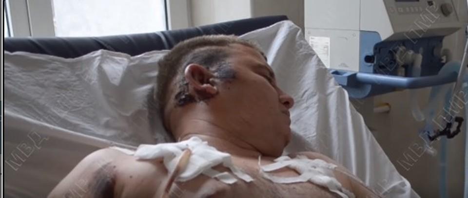 Виновник аварии скрывает свое лицо (Фото: скрин с видео).