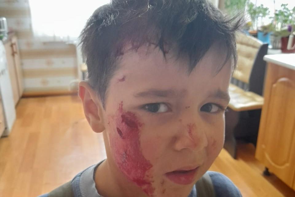 Так выглядел Миша сразу после нападения собаки. Фото: предоставлено родителями ребенка.