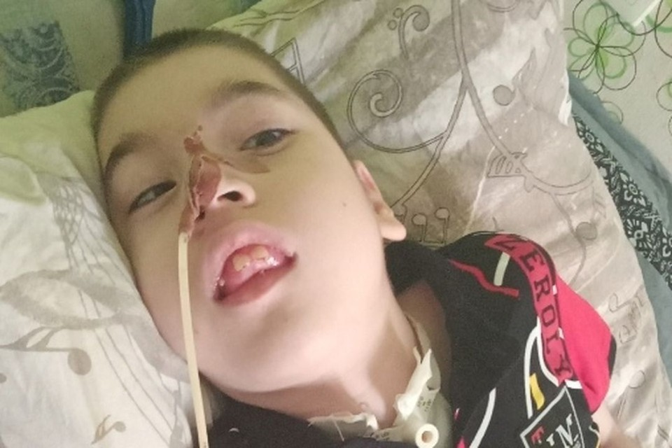 Кириллу сложно дышать самостоятельно. Фото: предоставлено Надеждой Святобог.