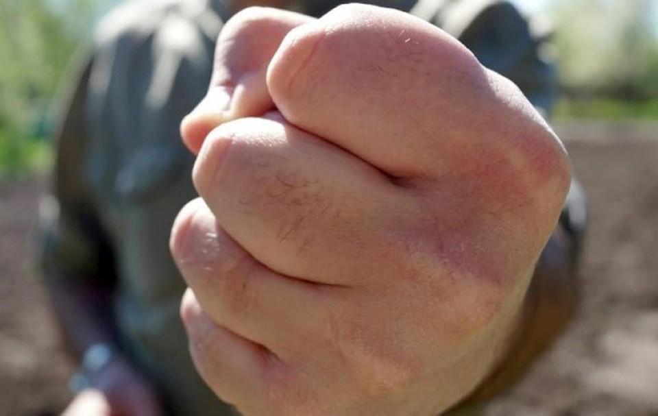 Чрезмерная агрессия уголовно наказуема. Фото: архив «КП»-Севастополь»