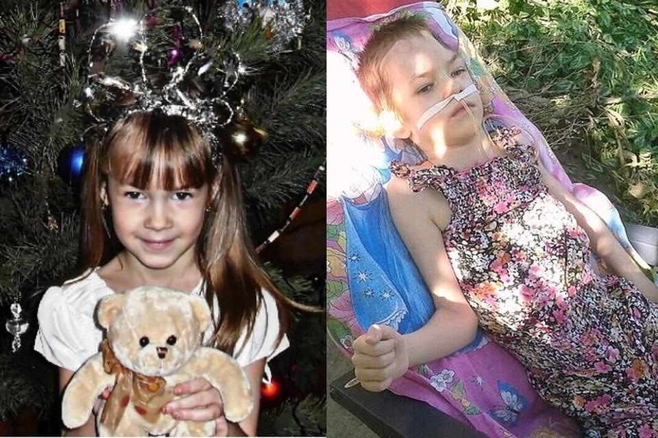 Маленькая Марина до болезни и после. Фото: из Архива семьи Алымовых.