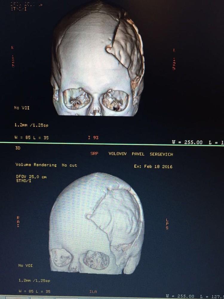 На компьютерной томографии видна область поражения - лобная и лицевая часть черепа
