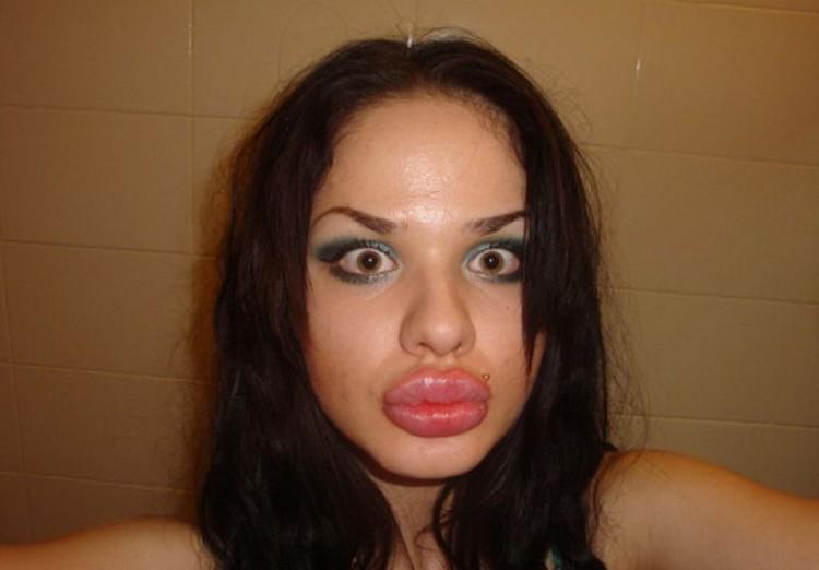 Кристина накачивает губы силиконом с 17 лет