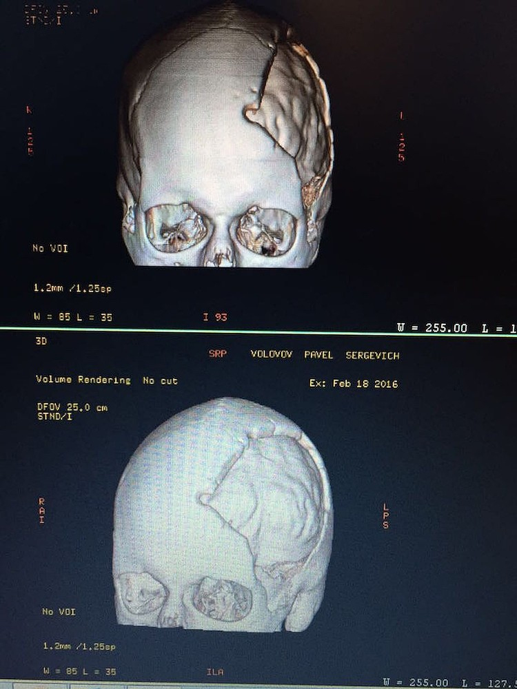 На компьютерной томографии видна область поражения - лобная и лицевая часть черепа.