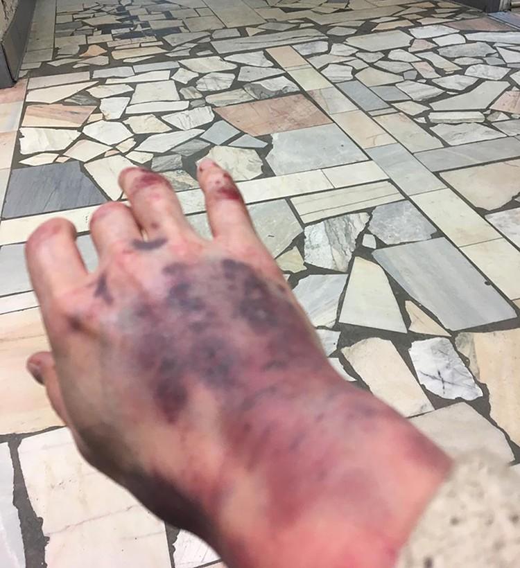 Водитель такси зверски избил москвичку за замечание