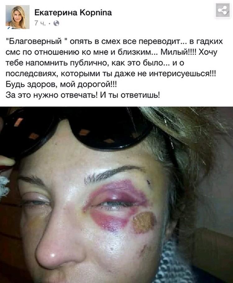 Опубликованные Екатериной Архаровой побои.