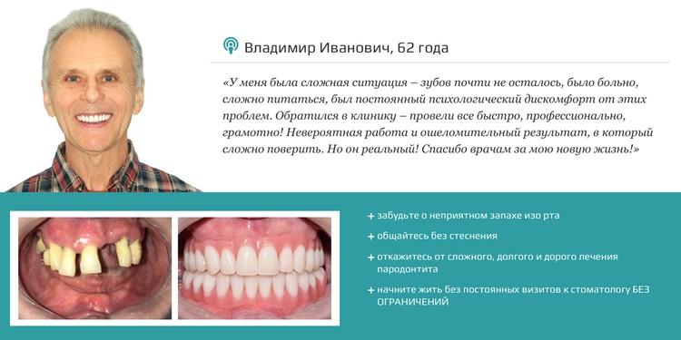 Часто на запущенных стадиях пародонтита наиболее оптимальным решением становится имплантация зубов по протоколу немедленной нагрузки.