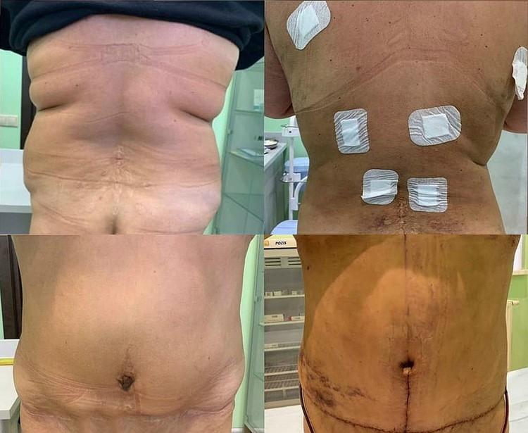 На фото слева Анастасия до операции Елены Чириковой и после.