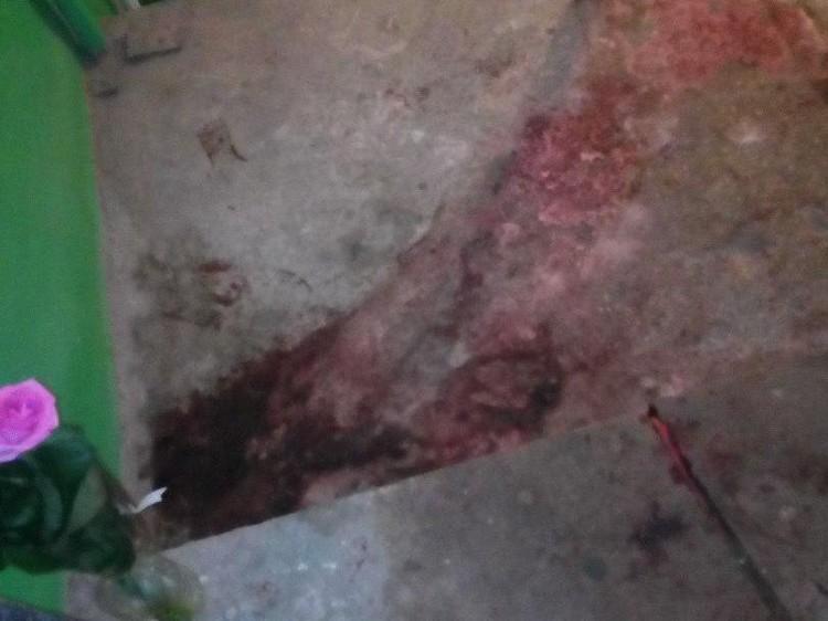Девушку нашли в луже крови. Фото соцсетей