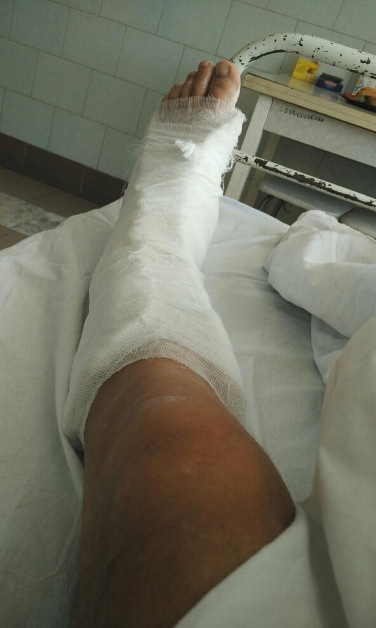 Операцию на ноге парню делали несколько раз. Фото: личный архив.