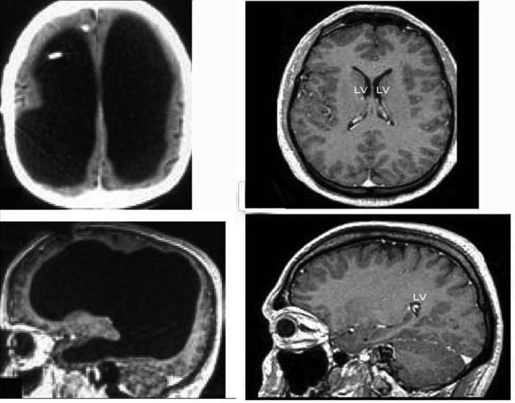Мужчина с жидкостью вместо мозга (левые снимки), справа нормальное строение мозга.