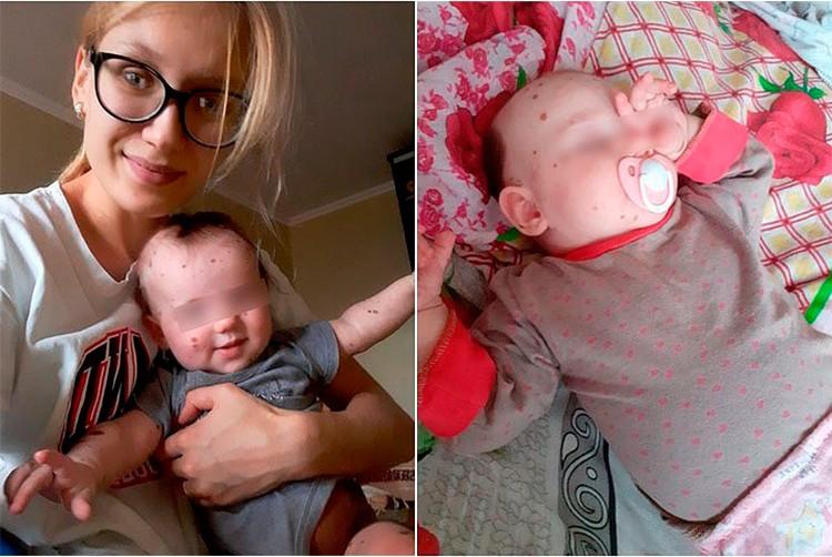 Мама практически сразу после рождения малышки забила тревогу.