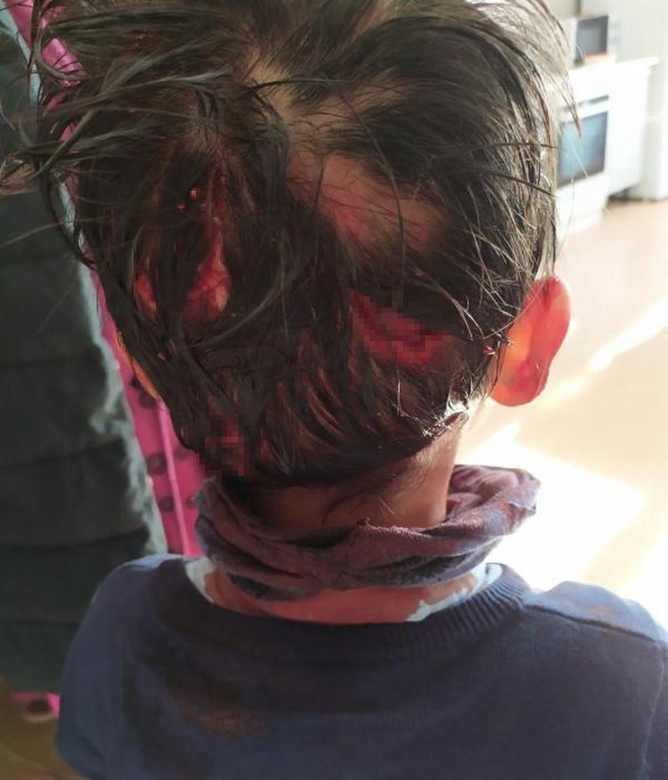 У ребенка страшные травмы.