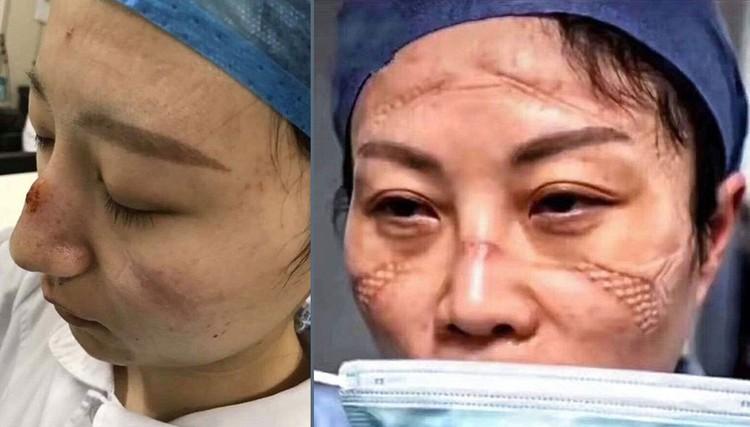 Китайские врачи после многочасовых дежурств в защитных масках.