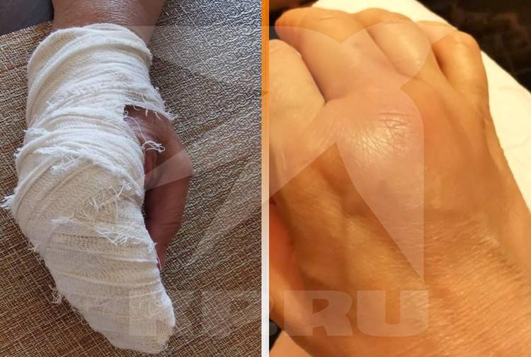 Няня со сломанной рукой и сотрясением мозга пробежала километр до остановки, пока ее не подобрали проезжающие.