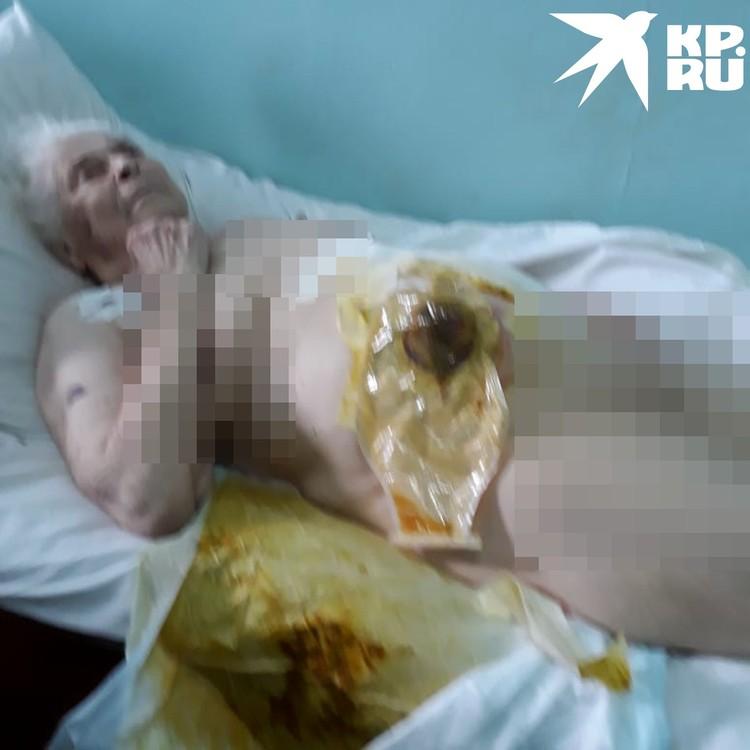 В таких жутких условиях пенсионерка оказалась после операции. Фото: личный архив.