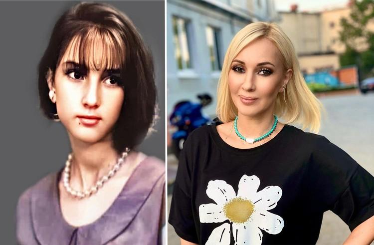 Лера Кудрявцева утверждает, что сохранила молодость без уколов красоты