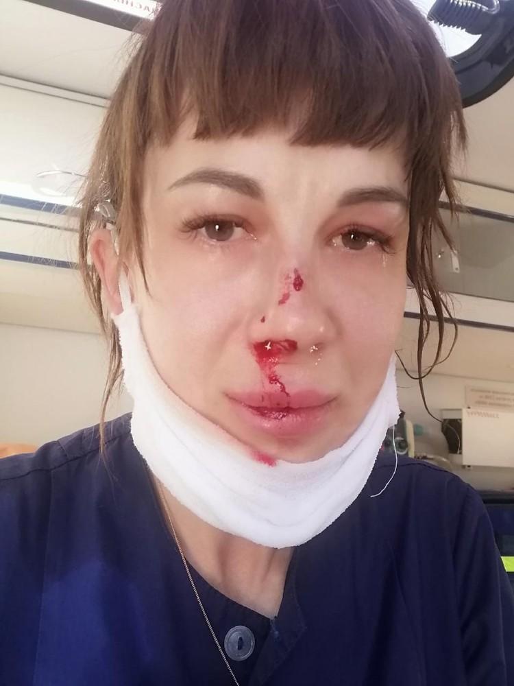 У девушки диагностировали сотрясение мозга и перелом носа. Фото предоставлено героем публикации