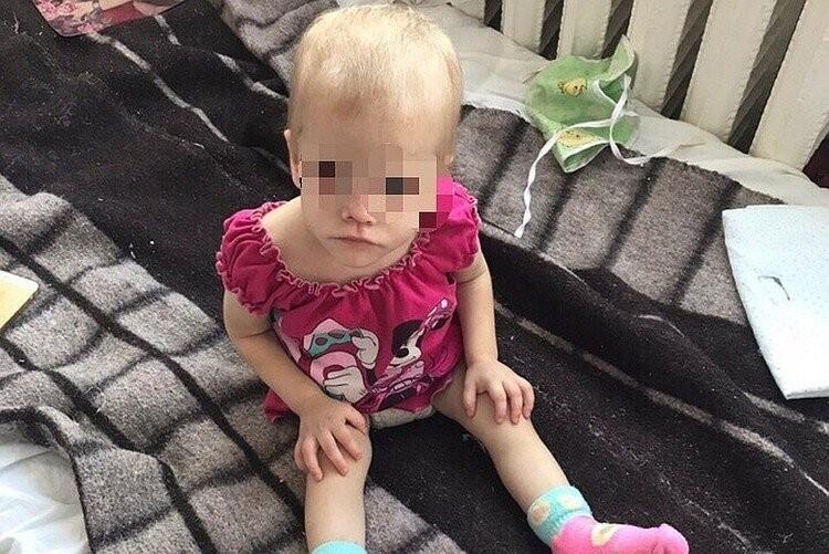 Малышка попала в больницу в 2018 году в крайнем истощении. Фото: предоставлено волонтерами
