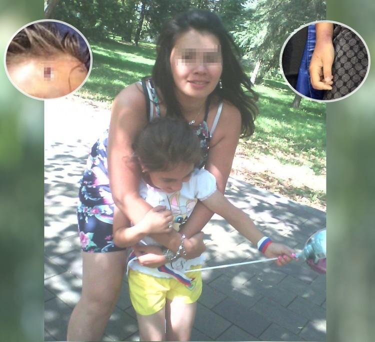 Мадина Ш. с погибшим ребенком, а также некоторые ее травмы на лбу и правой руке