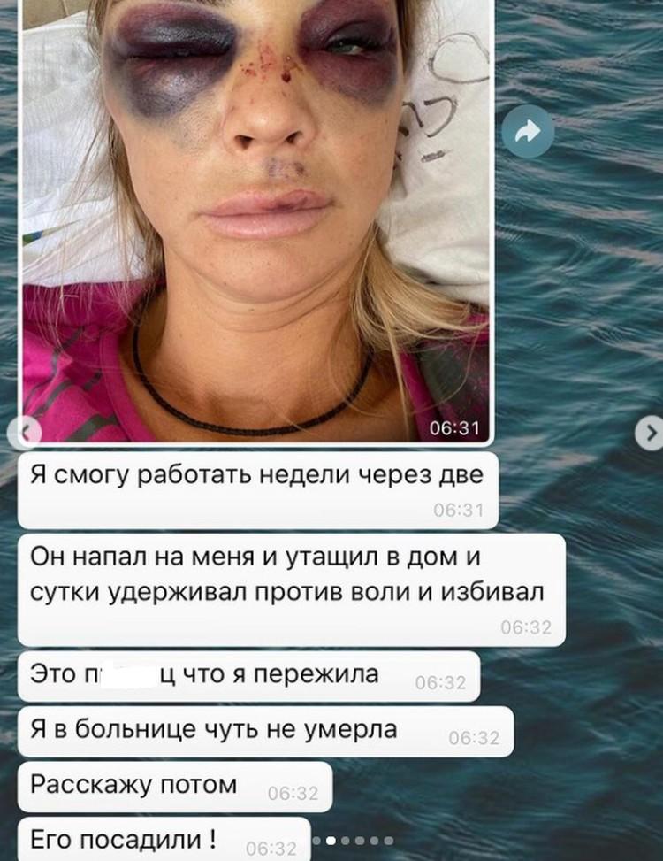 Ольга Катышева с разрешения подруги выложила переписку и фото избитой женщины. Фото: скриншот видео Olga Chocolate в Instagram