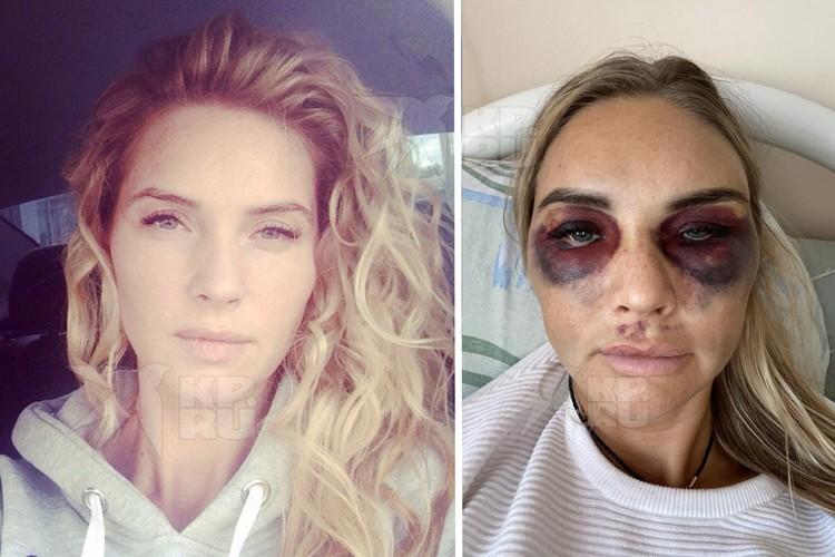 После избиения лицо Александры трудно узнать. Фото: предоставлено героиней публикации