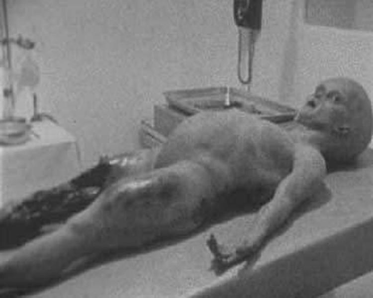 Так могли выглядеть пришельцы (кадр из документального фильма про вскрытие инопланетянина, которое якобы состоялось в 1947 году)